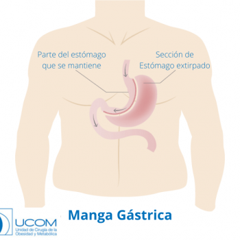 manga gástrica en un intestino grueso